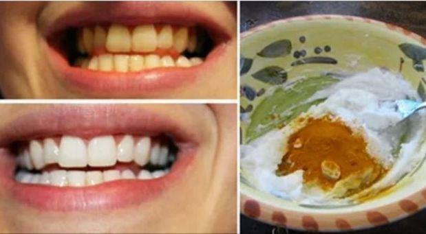 Chcete mít zářivě bílý úsměv? Vyzkoušejte tento osvědčený recept! Stačí vám k němu ingredience, které máte všichni doma!