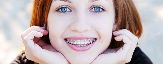 http://www.levitraopinion.com/how-much-are-braces/How Much Are Braces? levitraopinion.com