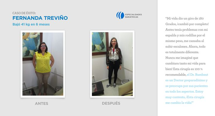 bypass gastrico before and after