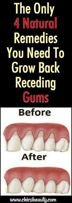 There are a lot of reasons why gums recede and it can become quite a health problem if this happens. If you are experiencing receding gums then you have found a great article to read. In this article you will find 4 of the best home natural remedies to help grow back your receding gums. …