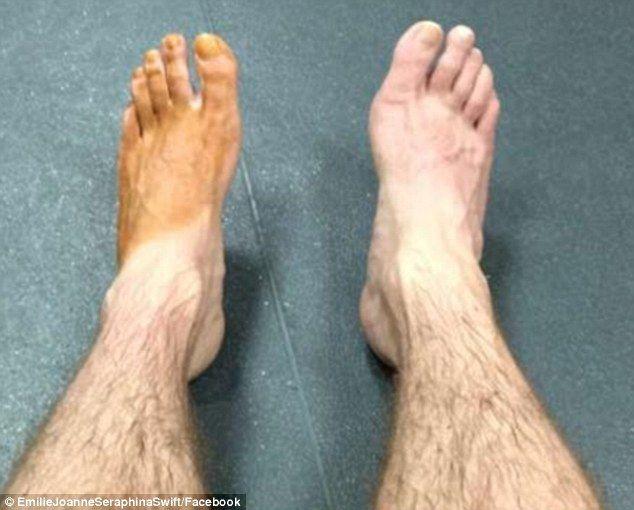 Um problemas de meia: Emilie Joanne Seraphina Swift escreveu 'Este foi o pé do meu namorado depois de uma semana. Ele me tirou isso do ginásio  Read more: http://www.dailymail.co.uk/femail/article-4104836/Men-share-hilarious-pictures-feet-stained-deep-brown-reveal-women-lives-use-SOCKS-fake-tanning-mitts.html#ixzz4VUcDcnOC  Follow us: @MailOnline on Twitter   DailyMail on Facebook   One sock problems: Emilie Joanne Seraphina Swift wrote 'This was my boyfriend's foot after...