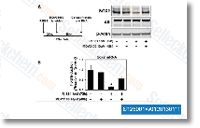 Buy Enzalutamide (MDV3100) | Androgen Receptor Chemicals | Price | IC50 | Research only