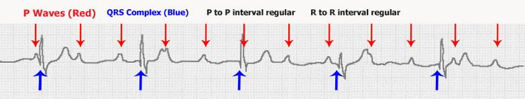p waves | ... there is no relationship between the p waves and the qrs complexes
