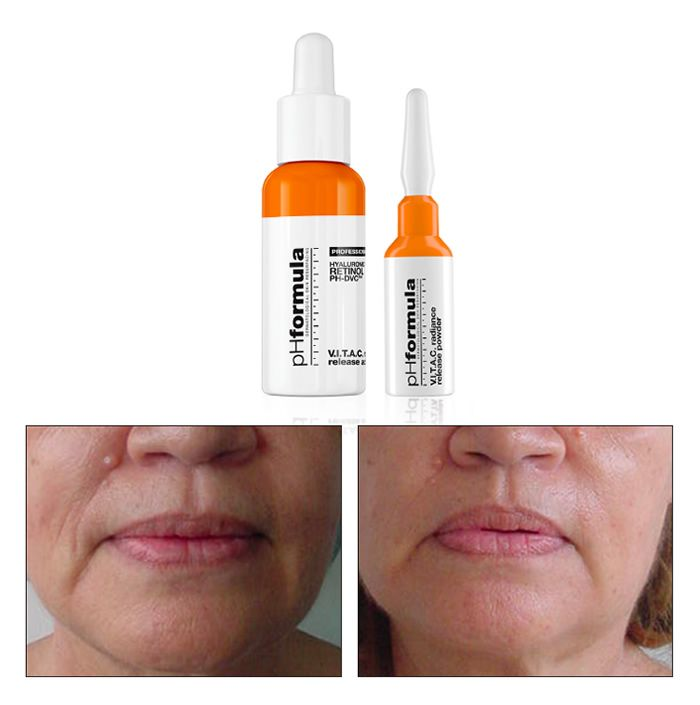 Maximum Vitamin C concentration levels are achieved in a highly absorbable medium. An advanced system which addresses early signs of cutaneous damage.  L-ascorbic acid helps to strengthen the skin's collagen and elastin network. The treatment is suited to use on photo-aged and pigmented skin and can help improve uneven pigmentation when performed regularly.