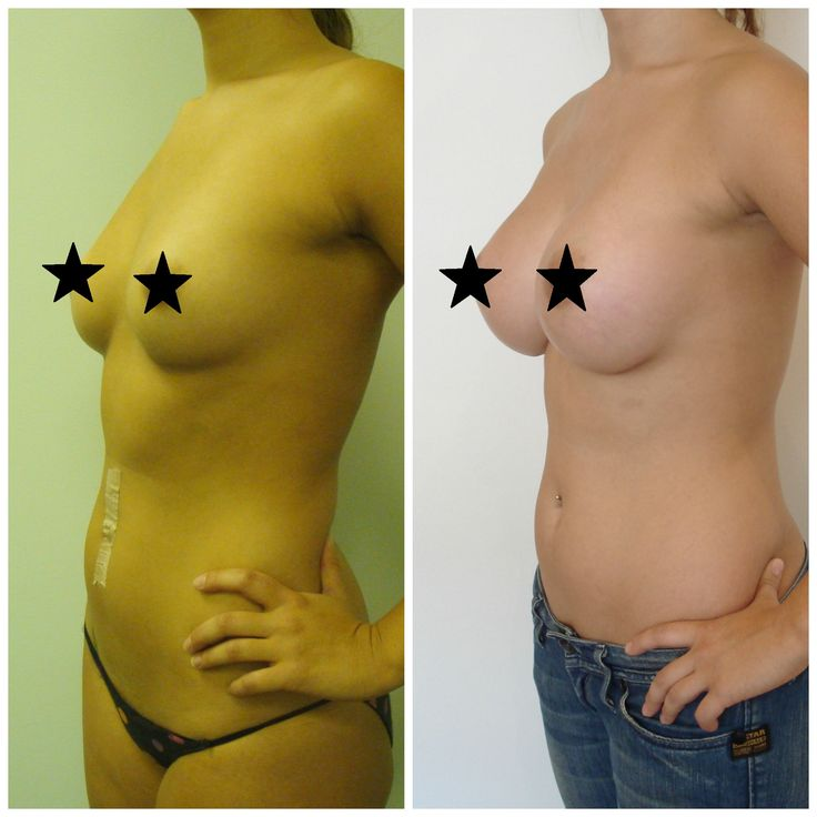 My Natural Breast Augmentation Story With