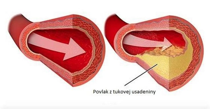 Táto látka čistí tepny, lieči karpálny tunel, fibrózu prsníka a mnohé iné problémy