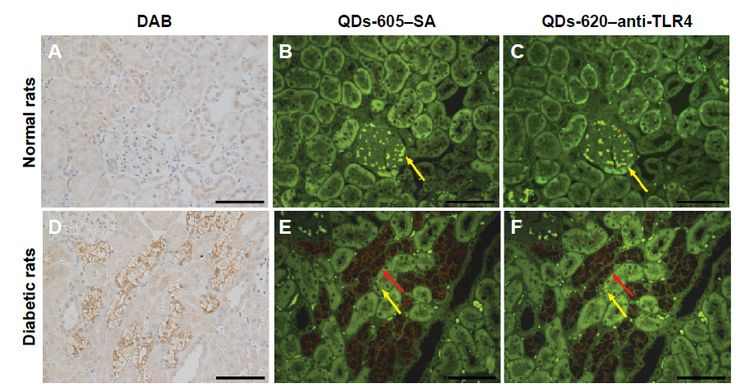 Figure 5 Distribution of Toll-like receptor 4 (TLR4) protein in the renal tissues of (A–C) normal rats and (D–F) diabetic rats identified with immunohistochemistry (IHC) and quantum dot (QD)-IHC.