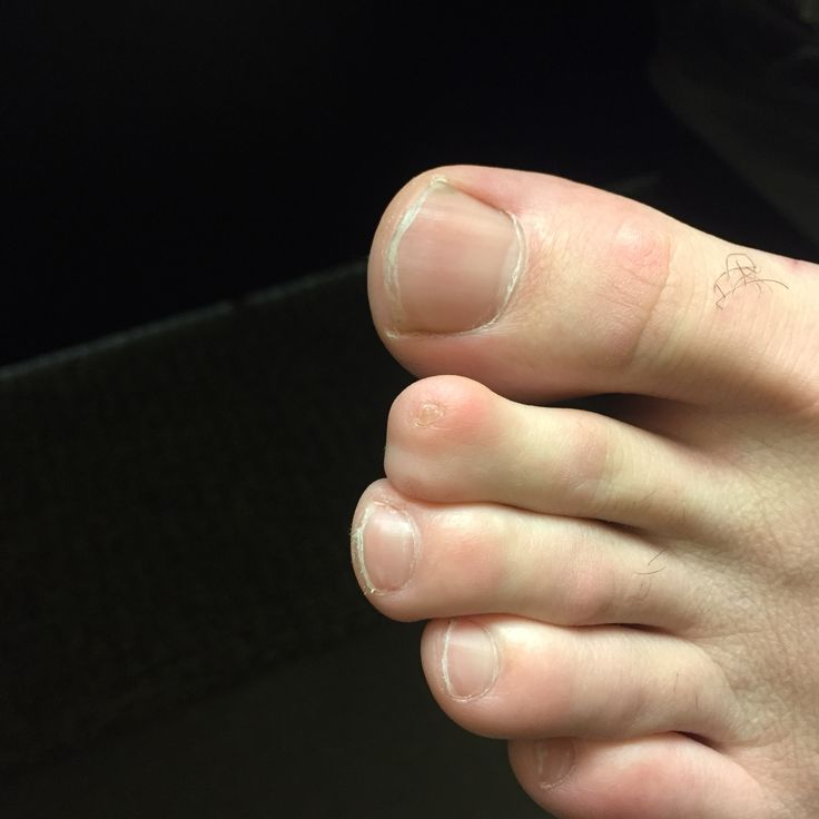 I have a weird second toe also..and yes...that is a really really small nail.