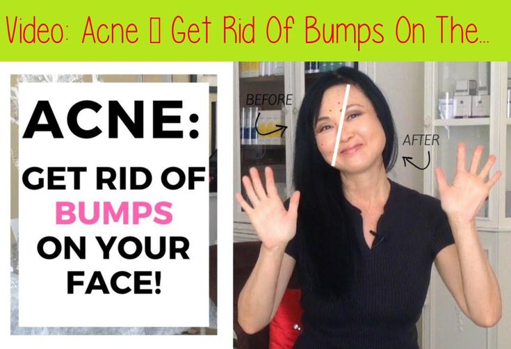 Acne get rid of bumps on the face acne face how to