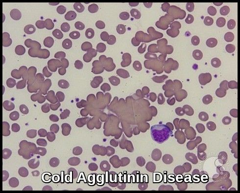 top 25+ best autoimmune hemolytic anemia ideas on pinterest | rash, Skeleton
