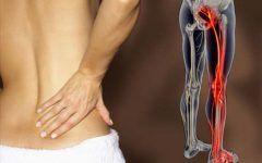 Os 6 Principais Sintomas da Dor Ciática