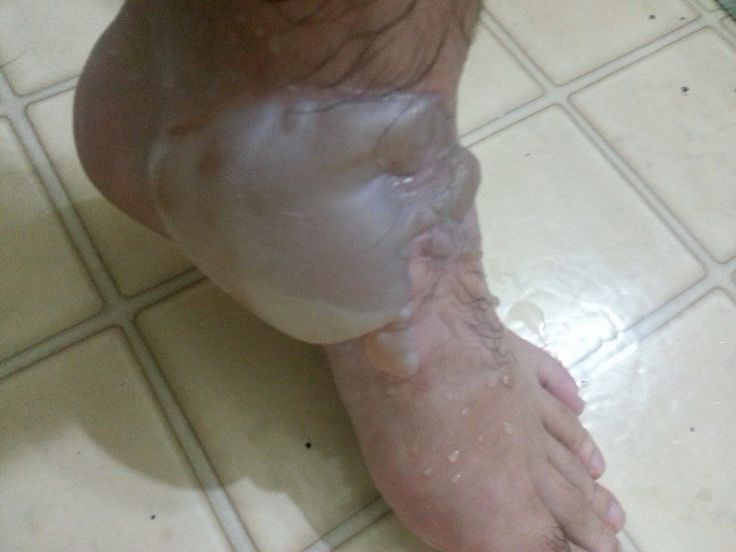 My friend spilled a bucket of boiling oil on his foot while he was working. 2nd degree burn, right through his leather boot. - Imgur