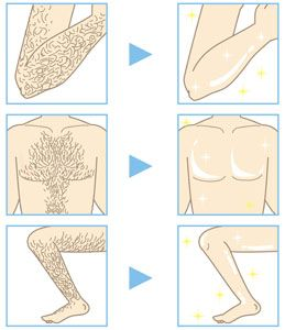 6 Things You Must Know Before Availing Laser Hair Removal  Know about the 6 facts about Laser Hair Removal before availing the service. Read about the benefits and effectiveness of this procedure and how you can be benefited from it ....  Please visit : http://www.nucosmeticclinic.com/blog/6-facts-laser-removal-help-you-decide/