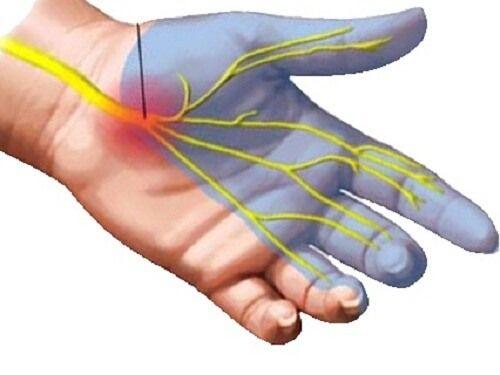 手根管症候群の自然な治し方