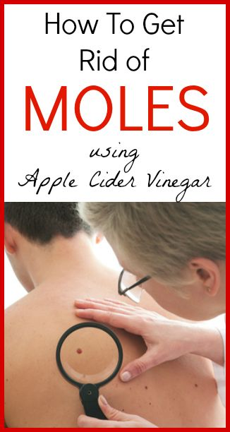 1000 Images About Moles Problems On Pinterest Mole How