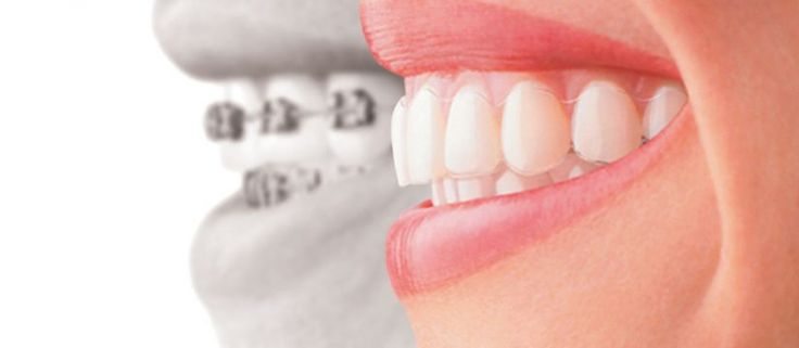 If you are using traditional braces then you must have to know about Invisalign. It is the best alternative and the revolutionary way of effectively moving teeth and correcting orthodontic issues. It is the modern solution to straighten teeth without using wires. Consult with any dentist Botany and change your braces with Invisalign.