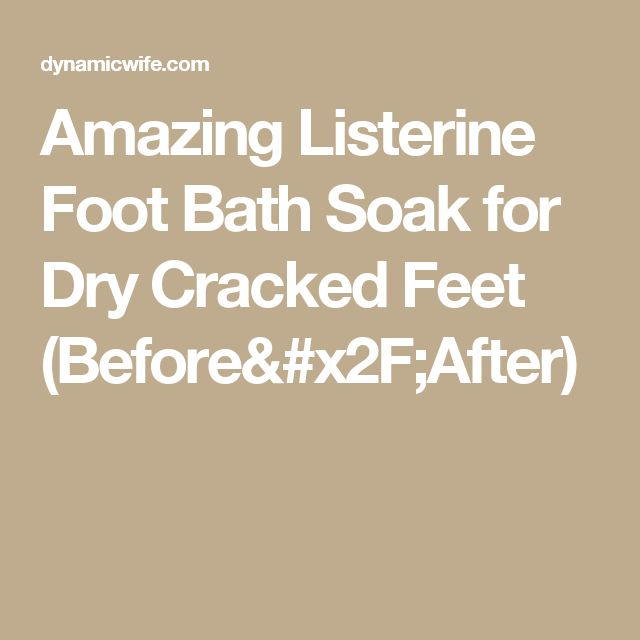 Amazing Listerine Foot Bath Soak for Dry Cracked Feet (Before/After)