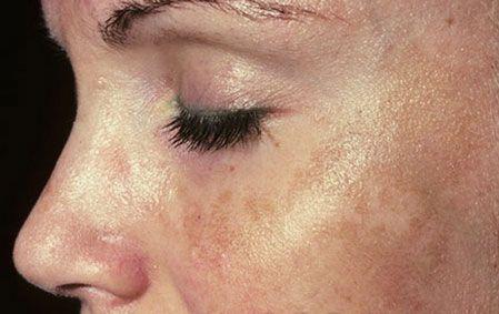 В суд после  фототерапии http://www.chelyabinsk.cosmo-expo.ru/news/438.php?show_art=10359  Жительница Челябинска подает в суд на клинику косметологии, в которой ей была оказана косметологическая услуга.На лице у пациентки было два небольших пигментных пятна, которые она и решила убрать, обратившись, как она считала, к квалифицированным специалистам. Но после процедуры фототерапии лицо покрылось грубыми корками, а когда они отпали, то на коже остались темные пятна.Судебно-медицинская…