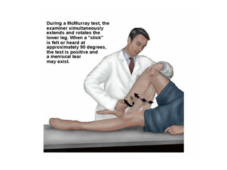 McMurray test for meniscal tear.,