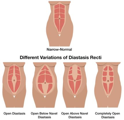 Different types of Diastasis Recti (aka mommy tummy pooch) and how to correct it with exercise