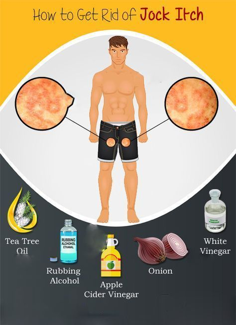 Get Rid Of Jock Itch Overnight With Best 5 Remedies | How To Stop Itchy Crotch