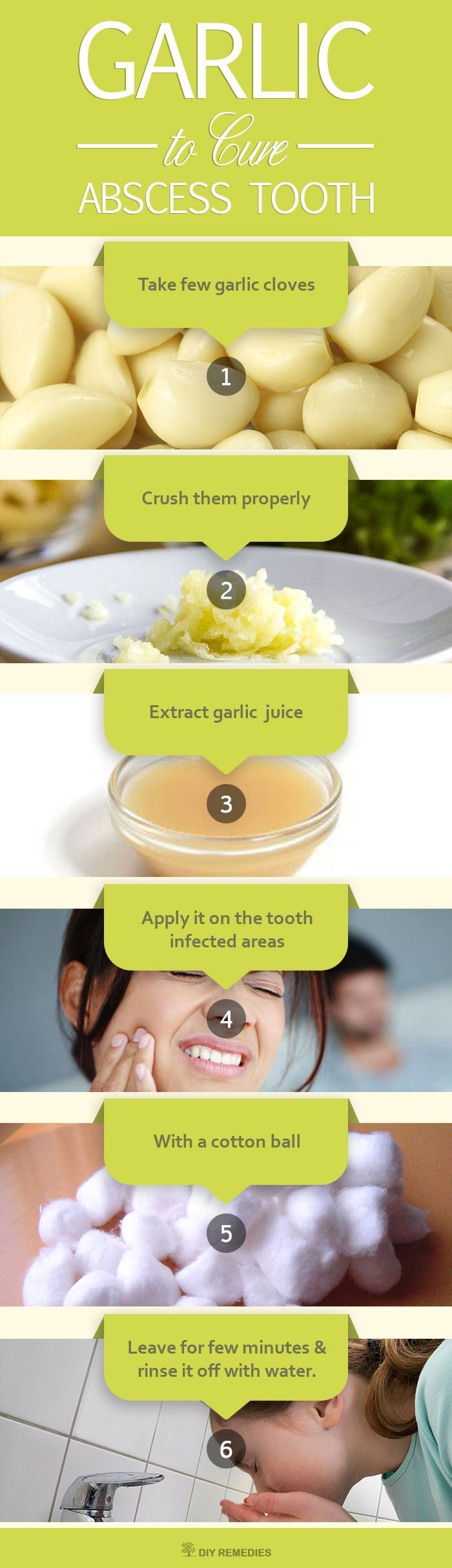 Method – 1: (Garlic)  Garlic has a natural anti-bacterial property that prevents the bacterial infection. It also contains sulfuric compounds like allicin that fights against the infection causing germs and reduces pain and irritation.