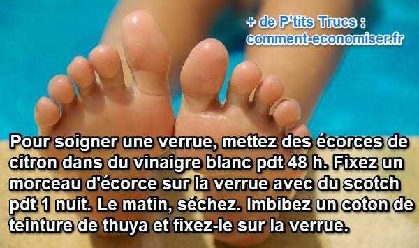 Le truc simple qui marche pour soigner une verrue sous le pied est d'utiliser du citron, du vinaigre et de la teinture mère de Thuya.   Découvrez l'astuce ici : http://www.comment-economiser.fr/soigner-une-verrue-sans-douleur.html?utm_content=buffere9b51&utm_medium=social&utm_source=pinterest.com&utm_campaign=buffer
