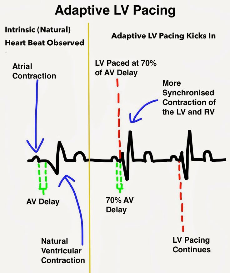 managed ventricular pacing mvp feature medtronic academy - 736×873