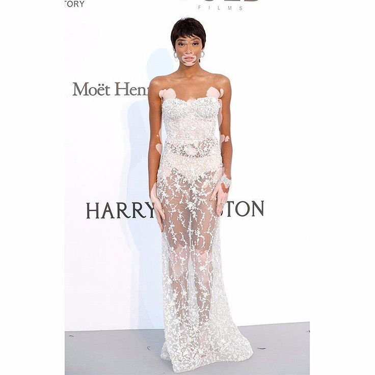 Model Winnie Harlow looks ravishing arriving at the amfAR Gala Cannes 2017, wearing an Ashi Studio SS17 Couture Collection dress. #AshiStudio #CoutureCollection #SS17 #amfAR #amfAR2017 #Cannes2017 #CannesFilmFestival#amfargala #amfAR2017 #winnieharlow #Amfar #amfarcannes #Amfar