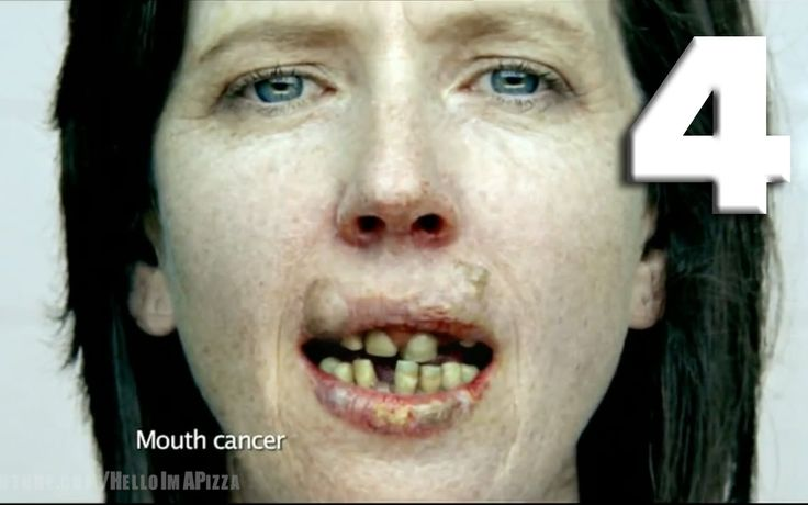 TOP 40: SCARIEST ANTI-SMOKING COMMERCIALS [PART FOUR]