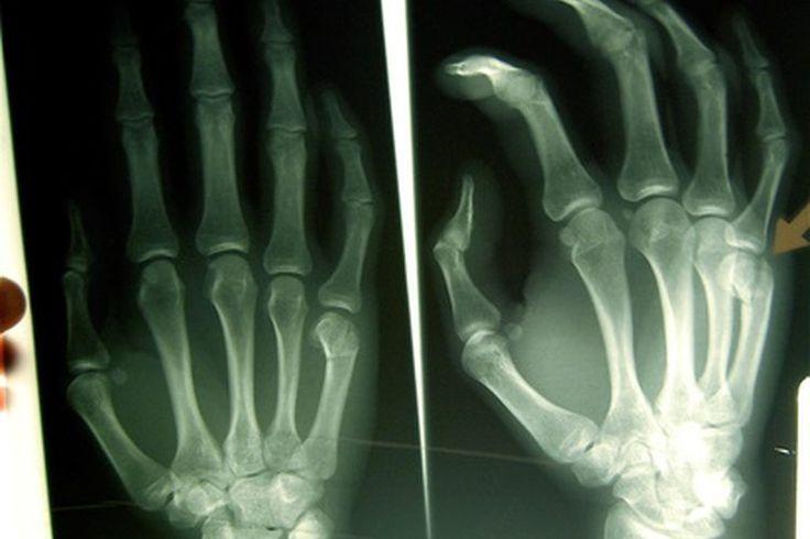 Los riesgos de ser un técnico radiólogo | Muy Fitness