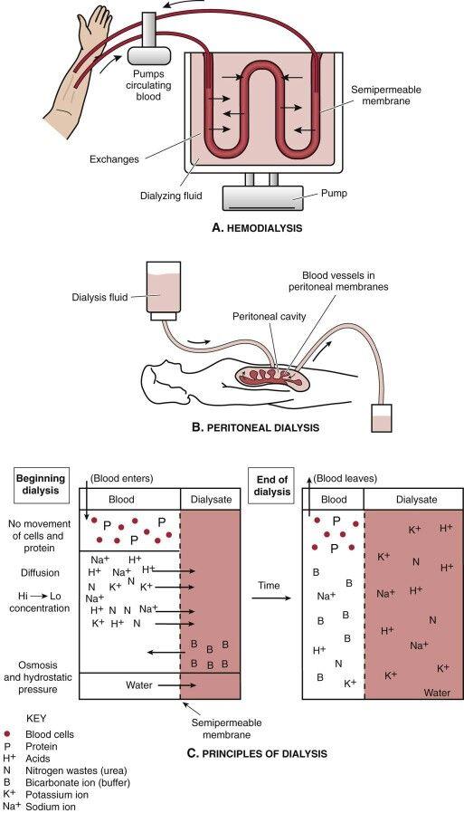 http://renalcalculi.net/dialysis-machine.html Kidney dialysis device. Dialysis