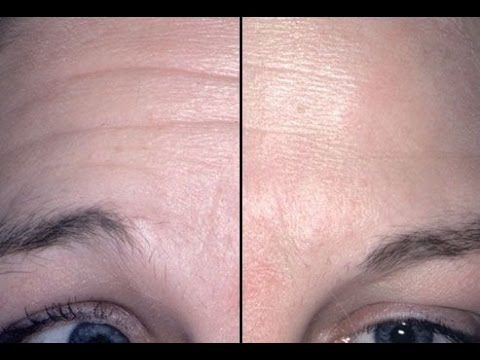 Facial Yoga Exercises For Removing Deep Forehead Wrinkles And Frown Lines Fast! - YouTube