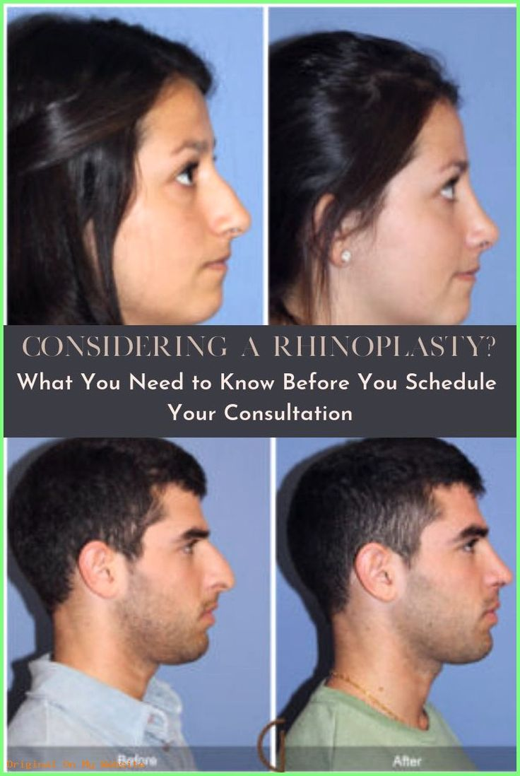 Revision Rhinoplasty | Considering a Rhinoplasty? Across Southern #California, many people be…
