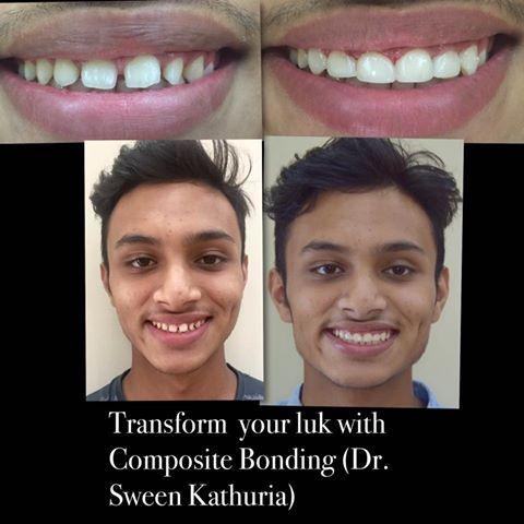 Teeth Gap Closure