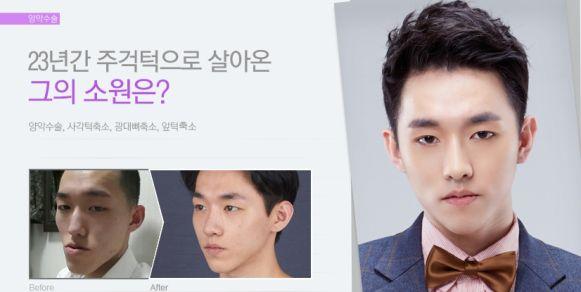 sebelum dan sesudah operasi kontur wajah & operasi dua rahang Korea