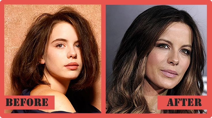 Kate Beckinsale Plastic Surgery Before And After Kate Beckinsale Plastic Surgery #KateBeckinsaleplasticsurgery #KateBeckinsale #celebritypost