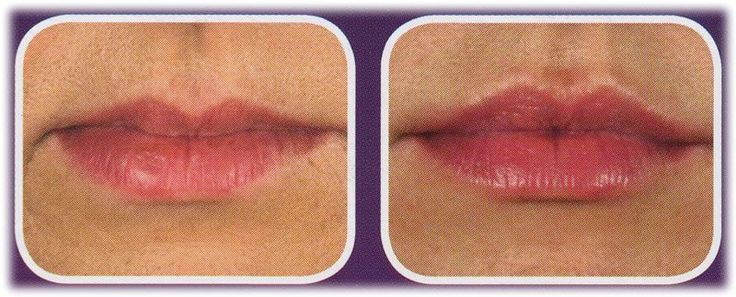 Dr Rita Rakus juvederm lips juvederm lips before and after juvederm before and a…