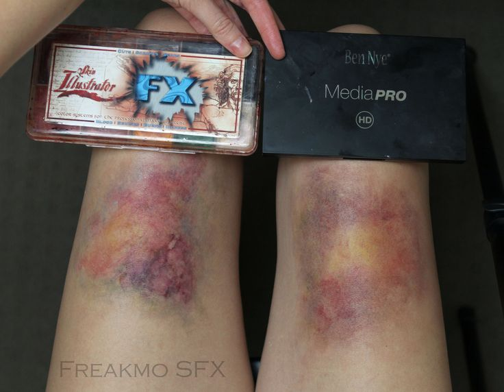 Bruise Makeup: Comparing Skin Illustrator FX with Ben Nye Ultimate FX palette (alcohol vs. creme)