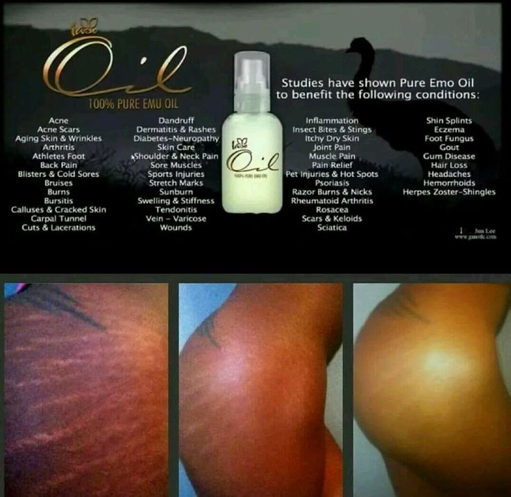 IASO OIL Emu Oil for Skin Problems in Health & Beauty | eBay