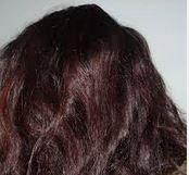 grow hair naturally