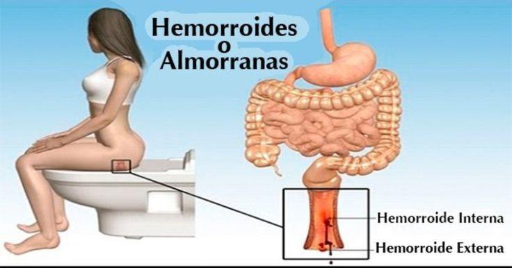 De esta forma podrás eliminar las hemorroides en casa, en tan sólo 24 horas – Ponte En Salud