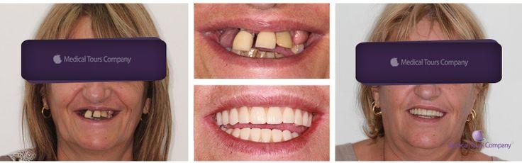 Dinti intr-o zi ...  #implanturi dentare #proteze fixa