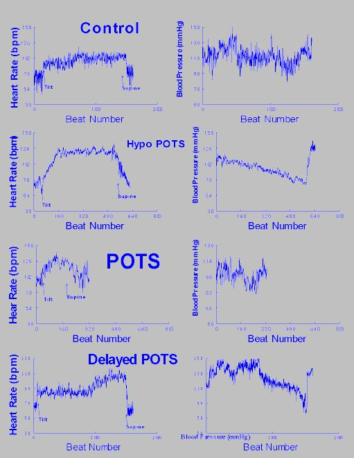 Chart of heart rate and blood pressure for different types of P.O.T.S.