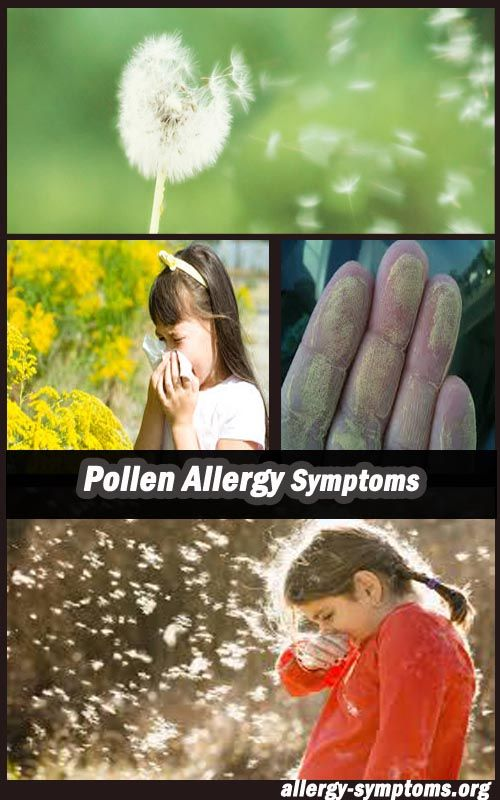 Severe weather allergy symptoms