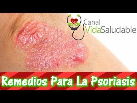 Remedios Caseros Para La Psoriasis - YouTube