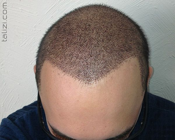 The First Week After Hair Transplantation Fue Hair Transplant Hair Transplant Hair Transplant Surgery