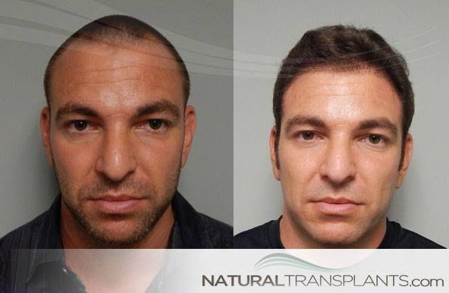 Balding Cure | Hair Transplant