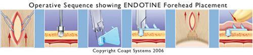 ENDOTINE implants: Brow lift, etc.