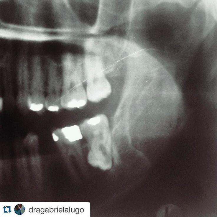 #Repost @dragabrielalugo with @repostapp.  Dónde está el tercer molar? Tercer molar en posición invertida en relación con el alveolo del segundo molar ....................................................................... Where is the third molar? Inverted position of third molar in proximity to the socket of second molar #cirugiabucal #qx #odontolovers #cirujano #surgical #oralsurgery #cirujano #cordal #cirugia #thirdmolar #tercermolar ##radiografia #radiography #radiology #radiologia…